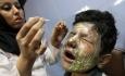 آذربایجان غربی بیمارستان تخصصی سوختگی و روانی ندارد